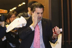 Image: U.S. Ambassador to South Korea Lippert leaves after he was slashed in the face by an unidentified assailant at a public forum in central Seoul