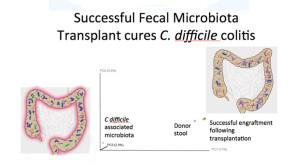 fecal transplant health news engraftment