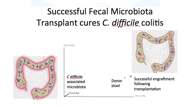 Intestinal Infection Treated With Fecal Transplant The