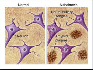 Alzheimer's Disease1