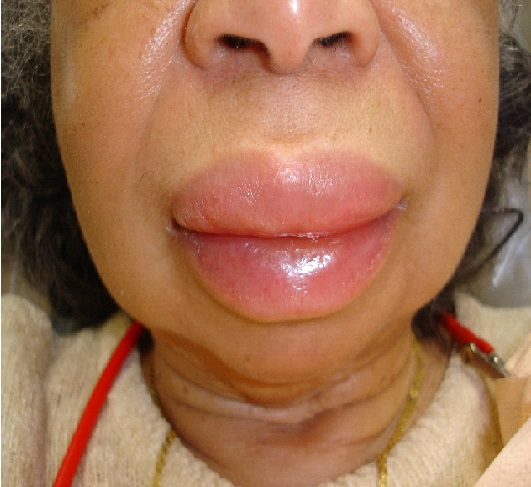 Hives | Rash | Skin Rash | Itchy Skin | MedlinePlus