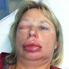 New Information About Angioedema Gazette Review