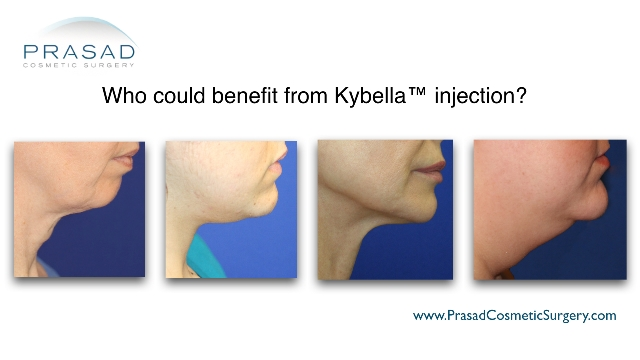 Kybella Injection A New Treatment For Double Chin -2861