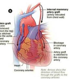 heart-bypass-2
