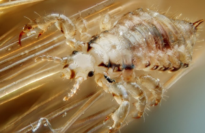 naturally-cure-head-lice-at-home-3