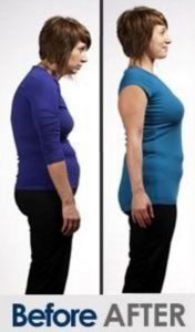 Use of Posture Now makes a huge difference to how someone looks and feels