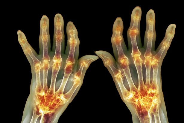 the best supplements for arthritis natural cures for joint pain the gazette review. Black Bedroom Furniture Sets. Home Design Ideas