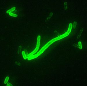 A fluorescent stain applied to Y. pestis, the cause of the Black Death
