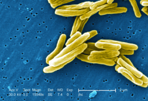 A colorized image from an electron microscope of the bacteria which causes Tuberculosis.