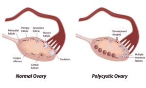 Normal Ovary vs. Polycystic Ovary