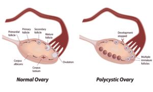 Normal Ovary vs. Polycystic Ovary